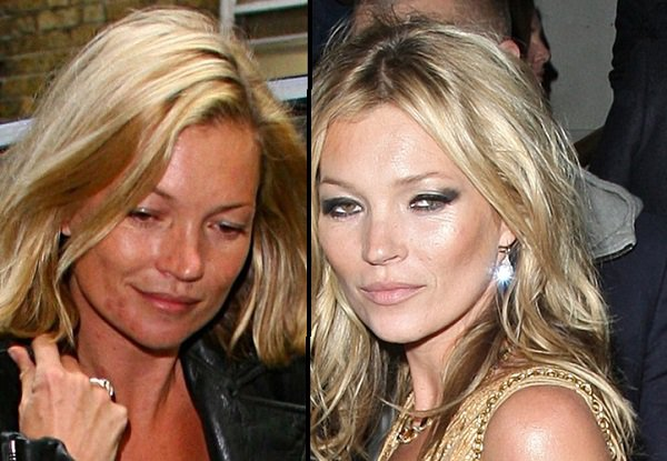 Kate Moss acne problems