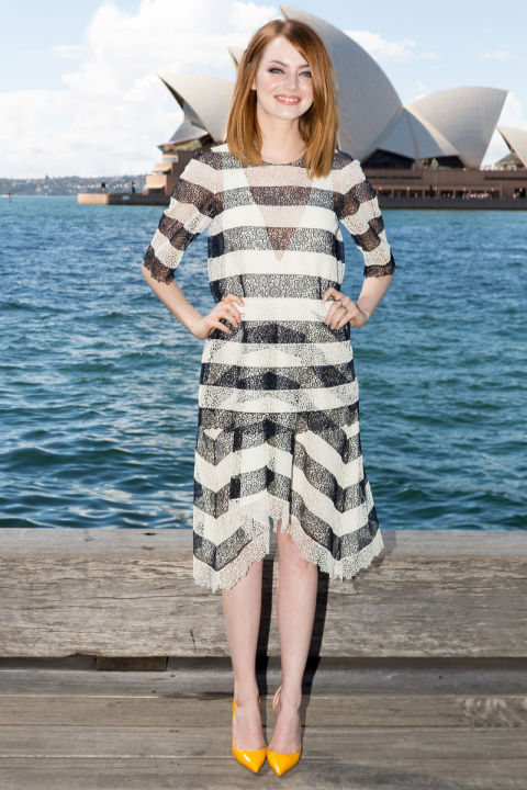 Emma Stone wearing a black and white striped dress