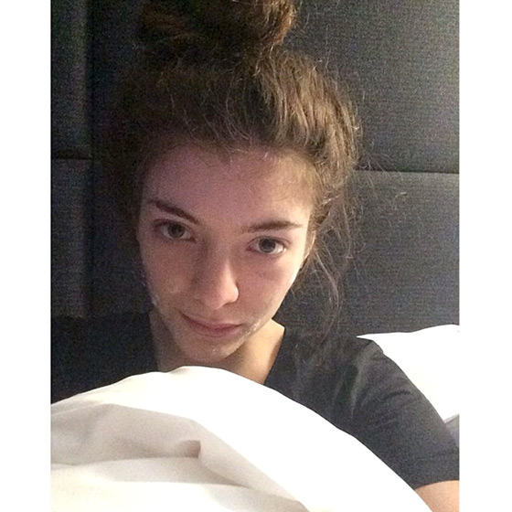 Lorde in a makeup free photo and acne cream on