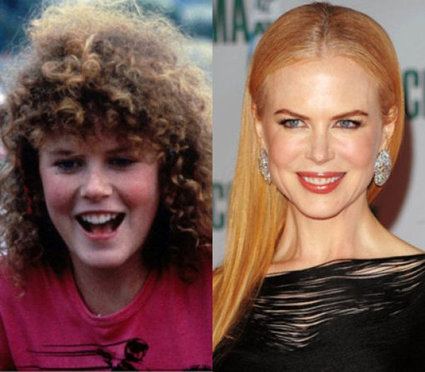 Nicole Kidman-celebrities then and now