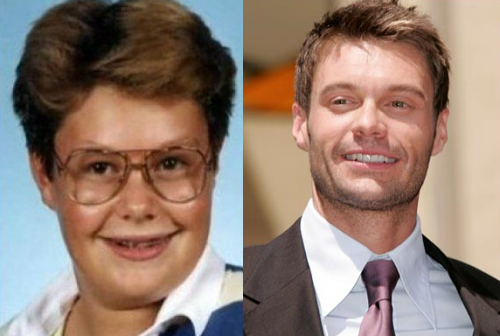 Ryan Seacrest before and after